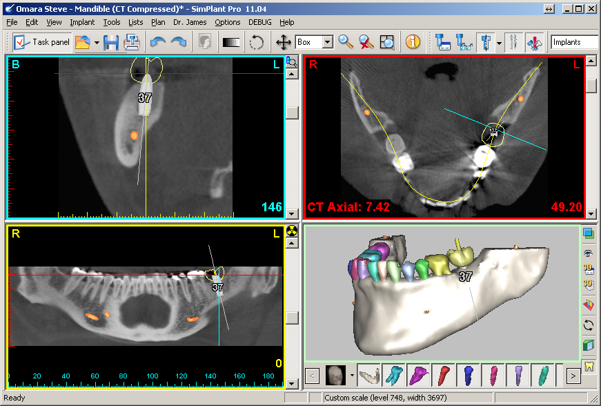 Indications For Cone Beam Ct